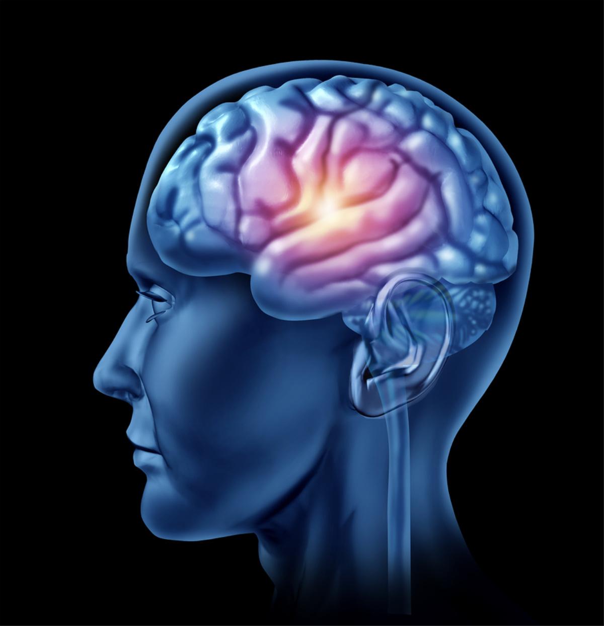 Homecare in Avondale AZ: Effects of Dementia Stigma